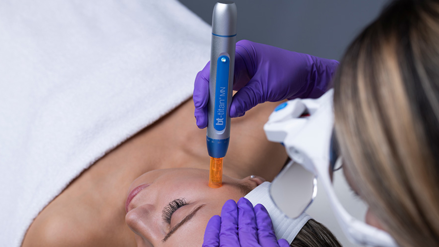 Microneedling-10-tips